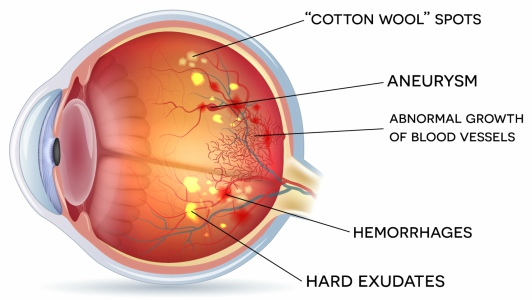 Retinal Vein Occlusion (RVO) - WA Eye Specialists  Find out more